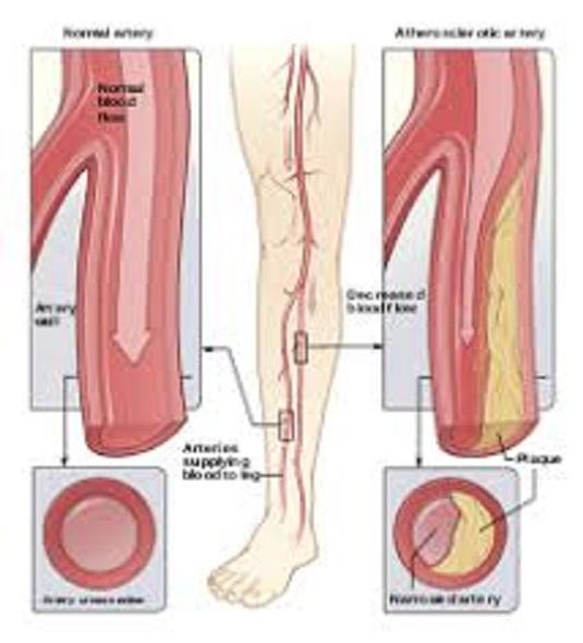 este varicele o boală vasculară periferică